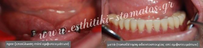 Mini Οδοντικά Εμφυτεύματα