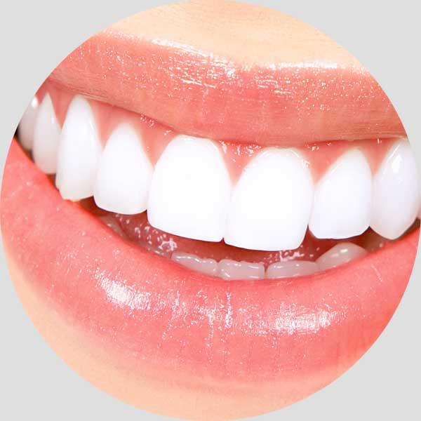 Αισθητική Οδοντιατρική - Λεύκανση δοντιών