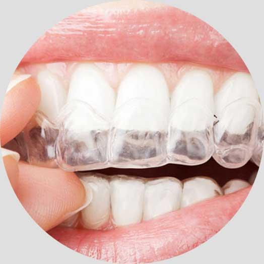 Προσθετική Οδοντιατρική